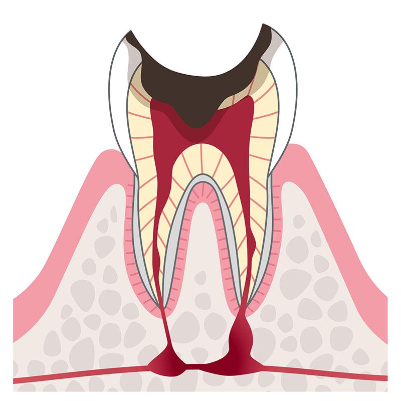 C3 歯の神経の虫歯