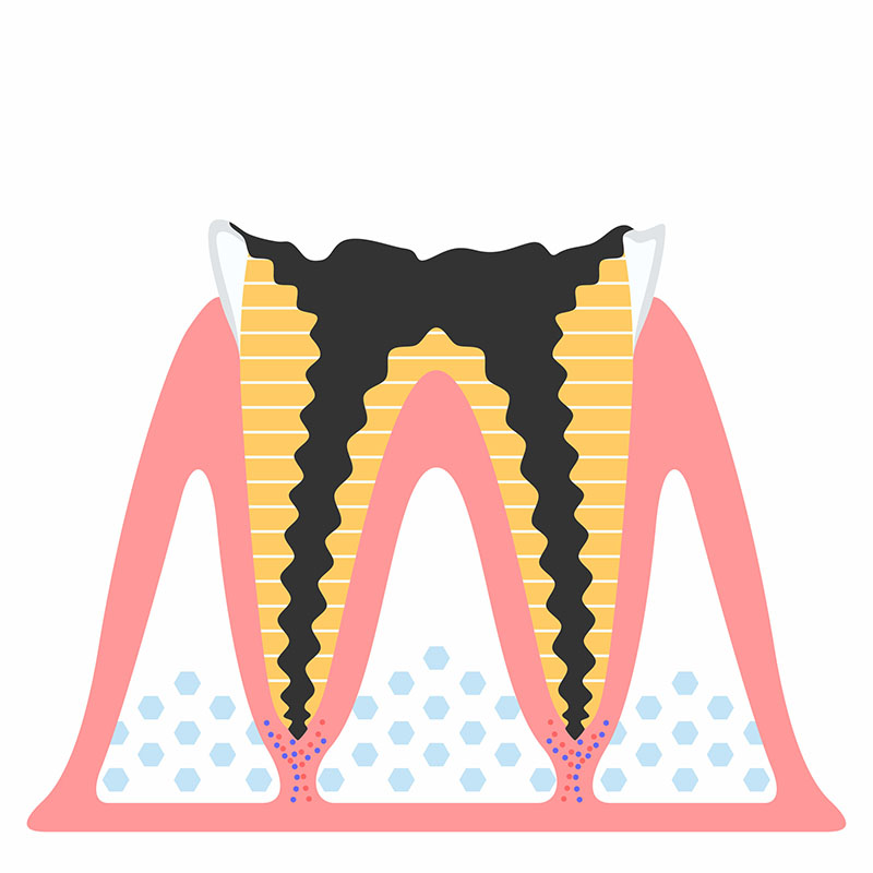C4 歯の根の虫歯