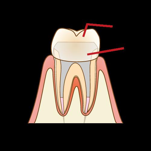 むし歯が悪化してしまったときの治療