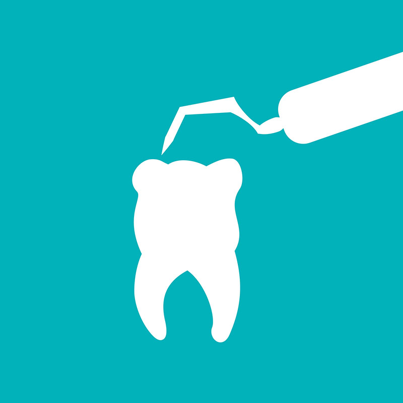 歯を長持ちさせる基礎工事である「根管治療」