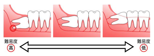 親知らずは必ず抜歯する必要があるの?