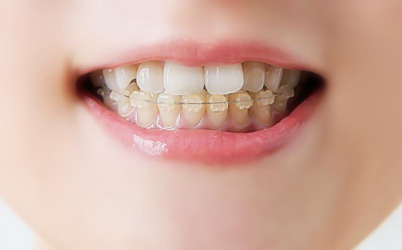 歯ぎしりが原因で引き起こされるお口のトラブル
