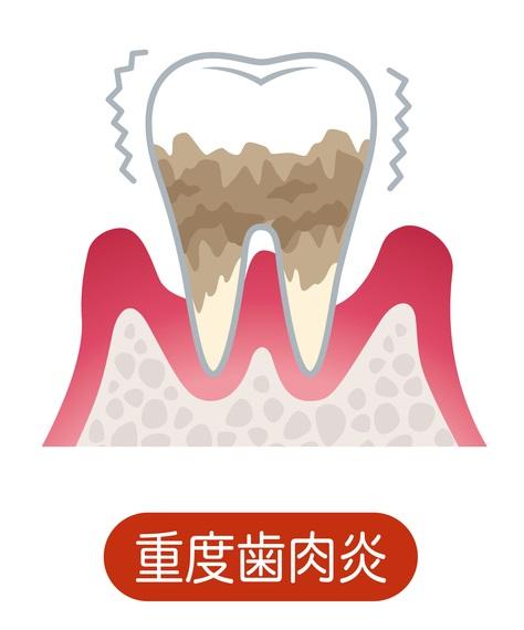 歯周外科手術・歯周組織再生療法
